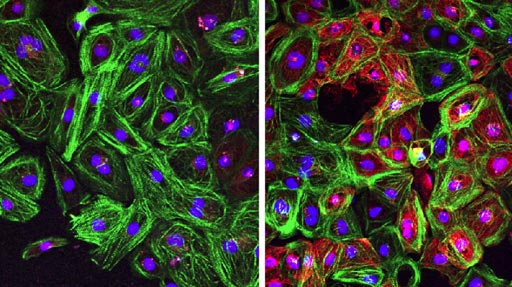 Image: Cardiomyocytes from patients with Duchenne muscular dystrophy (DMD) corrected by CRISPR-Cpf1 reframing during stemness (right) show restored dystrophin expression (red), compared to uncorrected cells (left) (Photo courtesy of Science Advances).