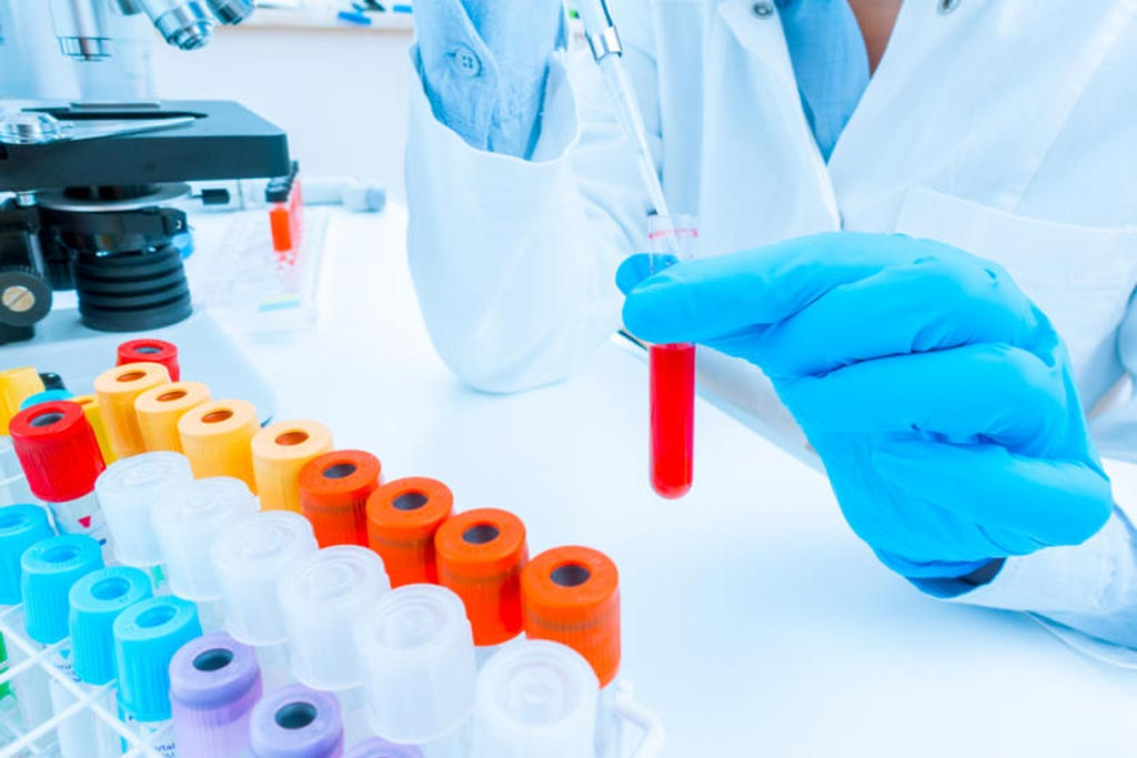 Image: Scientists from an international consortium have identified a large number of new genetic markers that predispose individuals to lupus (Photo courtesy of iStock).