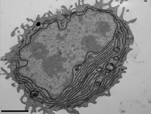 Image: An electron microscopy image showing an antibody-secreting plasma cell generated using antigen- and CpG-coated nanoparticles (Photo courtesy of Sanjuan Nandin et al., 2017).