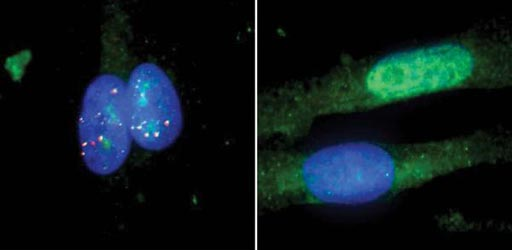 Image: Photomicrographs of muscle cells from a patient with myotonic dystrophy type I, untreated (left) and treated with the RNA-targeting Cas9 system (right). The MBNL1 protein is in green, repetitive RNA in red and the cell\'s nucleus in blue (Photo courtesy of the University of California, San Diego).