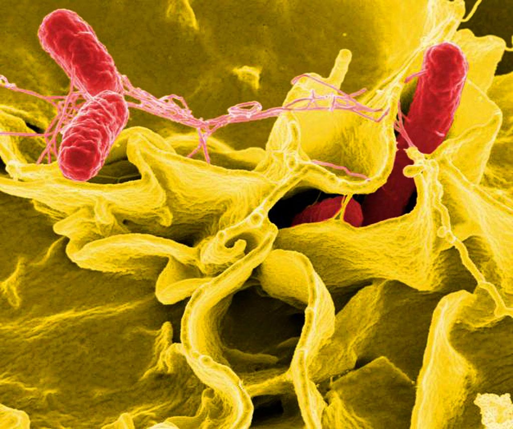 Image: Digitally colorized scanning electron microscopic image showing Salmonella Typhi bacteria (red) invading an immune cell (yellow) (Photo courtesy of the CDC Public Health Image Library).