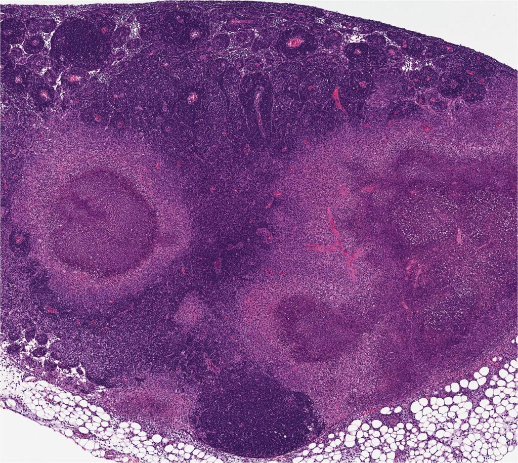 Image: Mice infected with the bacteria Yersinia pseudotuberculosis form granulomas - structures that confine pathogens. But those with a mutant form of the RIPK1 enzyme, rendering cells unable to undergo a particular form of cell death called apoptosis, do not. This RIPK1-induced apoptosis is thought to be a strategy that helps dying cells alert their neighbors that an infection is present (Photo courtesy of the University of Pennsylvania).