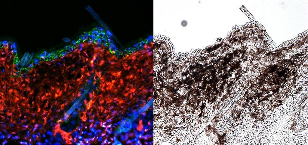 Image: Fluorescence microscopy reveals melanoma (red, left; black, right) emerging from melanocyte stem cells (Photo courtesy of Hyeongsun Moon and Andrew White, Cornell University).