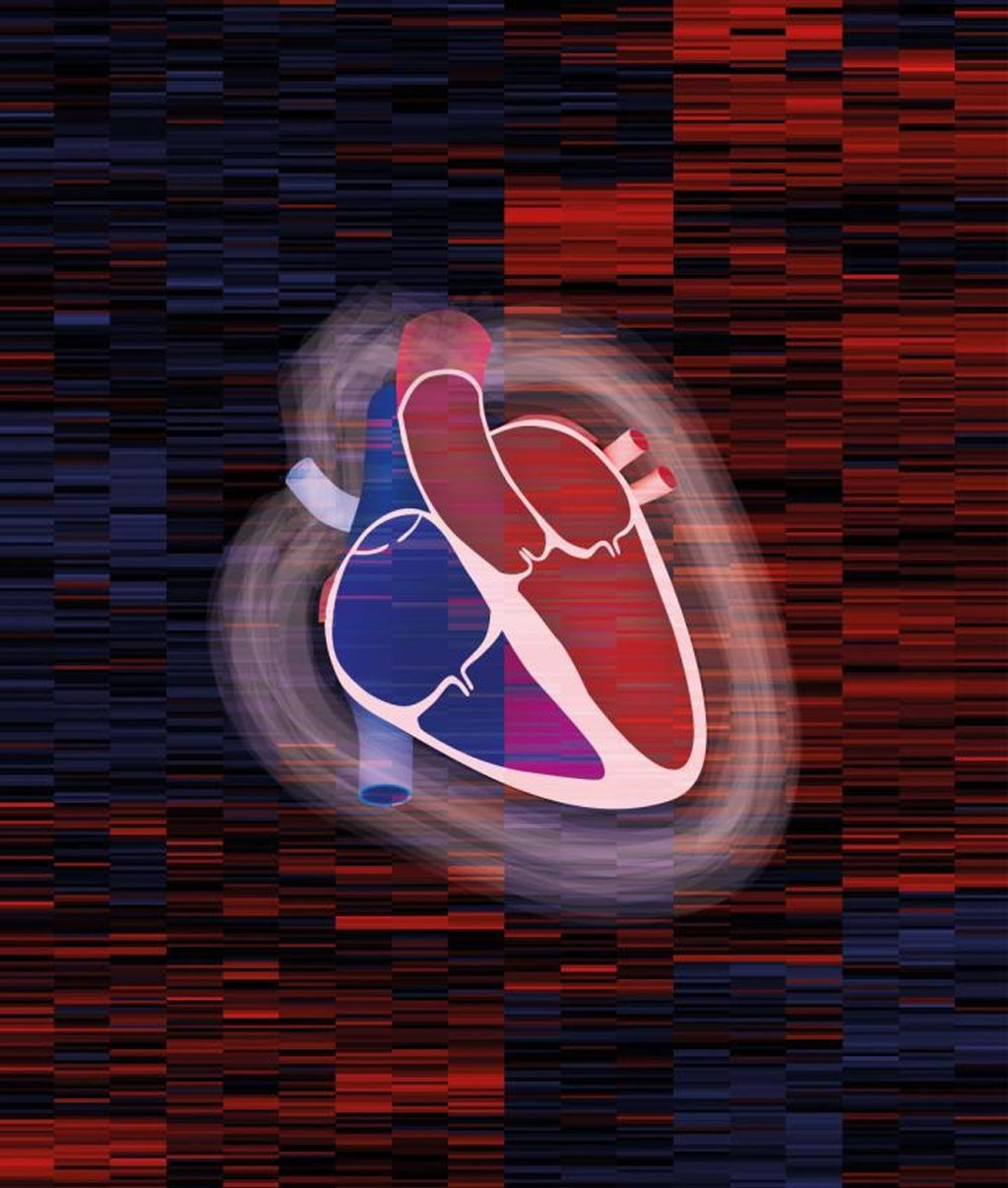 Image: Foreground: Drawing of a cardiac muscle. Background: excerpt from a heart map, an overview of the proteins analyzed for the proteomic map (Photo courtesy of Doll, Kraue, Menzfield, Max Planck Institute of Biochemistry).