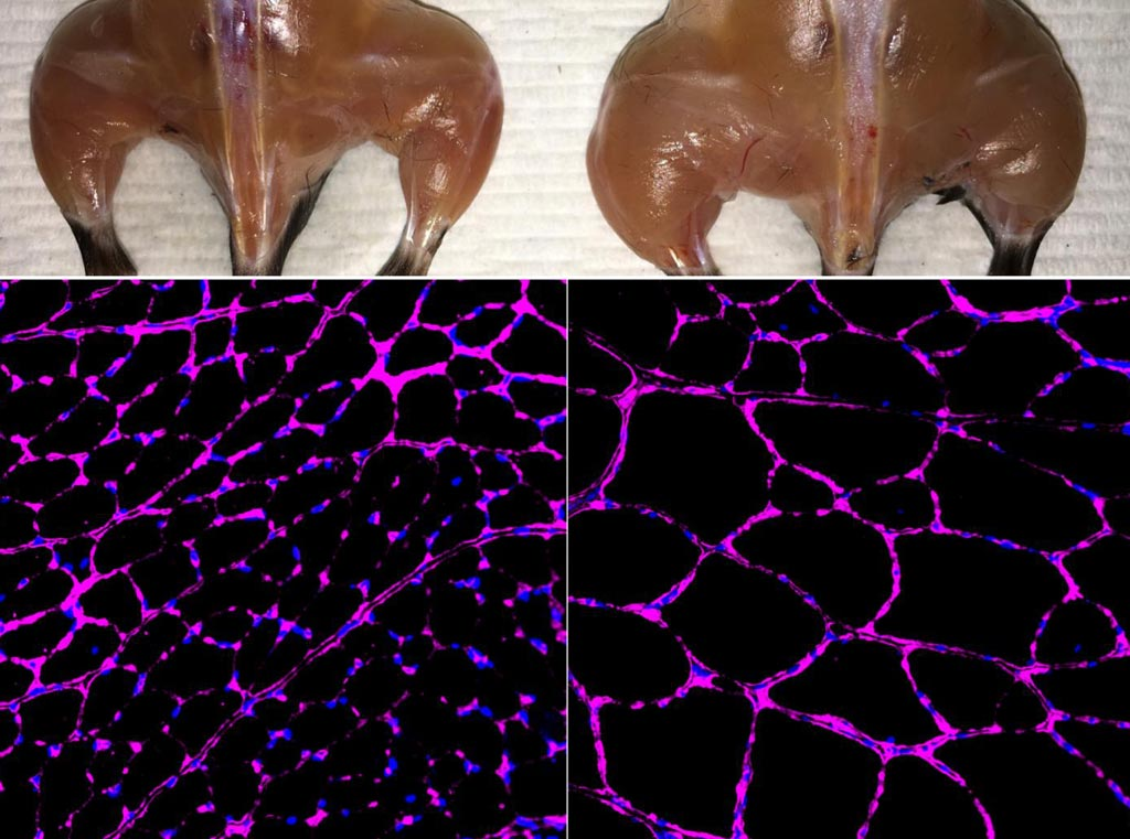 Image: An advanced in vivo Cas9-based epigenetic gene activation system enhances skeletal muscle mass (top) and fiber size growth (bottom) in a treated mouse (right) compared with an independent control (left). The fluorescent microscopy images at bottom show purple staining of the laminin glycoprotein in tibialis anterior muscle fibers (Photo courtesy of the Salk Institute for Biological Research).