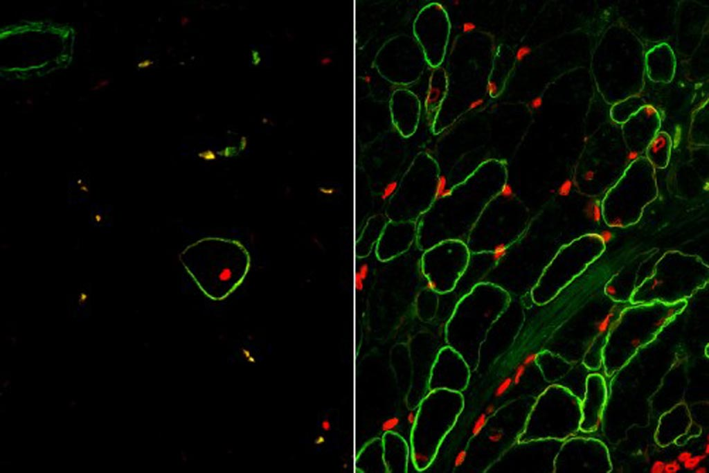 Image: Skeletal muscle cells isolated using the ERBB3 and NGFR surface markers (right) restore human dystrophin (green) after transplantation significantly greater than previous methods (left) (Photo courtesy of the University of California, Los Angeles and Nature Cell Biology).