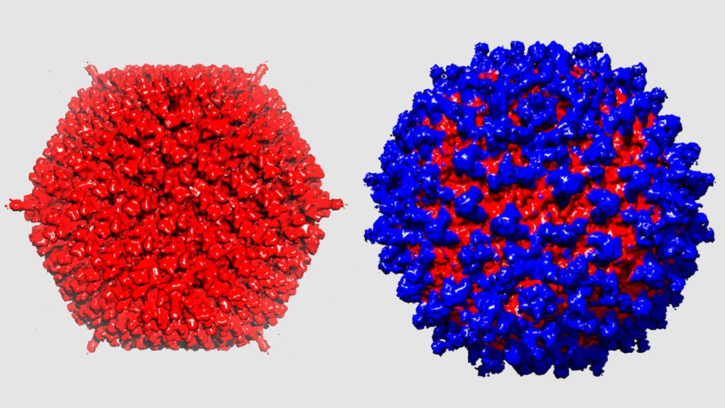 Image: An adenovirus without and with a novel protein shield. The adenovirus (left) was camouflaged from the immune system by the protective coat (right) (Photo courtesy of the University of Zurich).