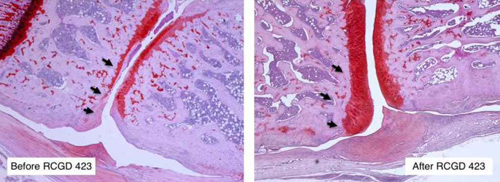 Image: Osteoarthritis leads to the progressive loss of joint cartilage, shown in red (Photo courtesy of Nancy Liu/Denis Evseenko Laboratory, University of Southern California).