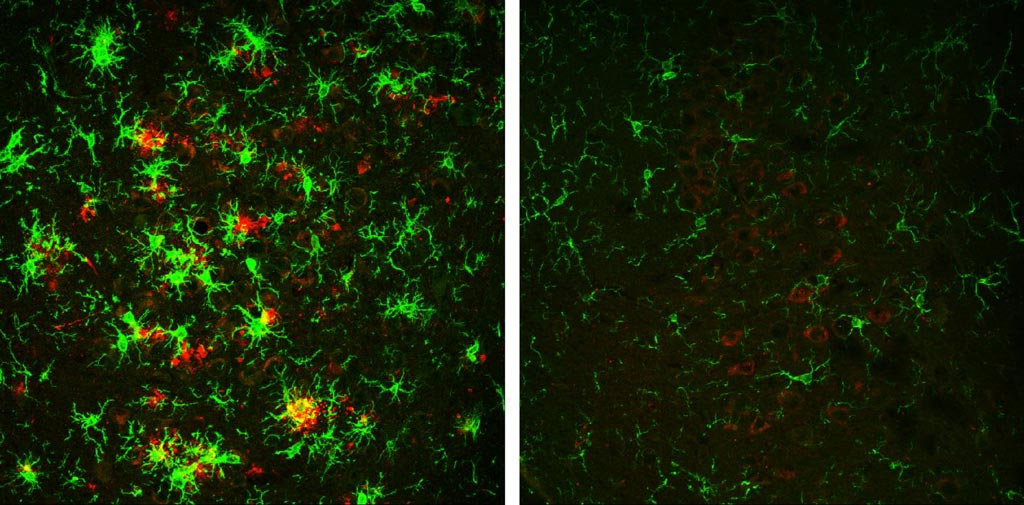Image: The brain of a 10-month-old mouse with Alzheimer\'s disease (left) is full of amyloid plaques (red) surrounded by activated microglial cells (green). But these hallmarks of Alzheimer\'s disease are reversed in animals that have gradually lost the BACE1 enzyme (right) (Photo courtesy of The Cleveland Clinic and Rockefeller University Press).