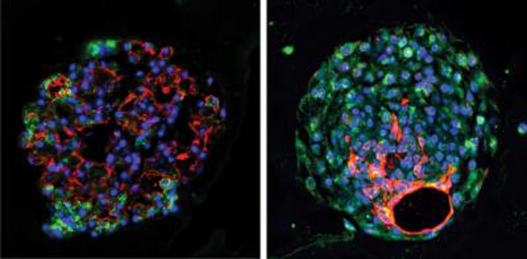 Image: Mouse (left) and human (right) alveolar progenitor cells grow into large lung organoids in culture, and make multiple types of epithelial cells including gas exchange type 1 cells (red) and surfactant-producing type 2 cells (green) (Photo courtesy of the Morrisey Laboratory, University of Pennsylvania).