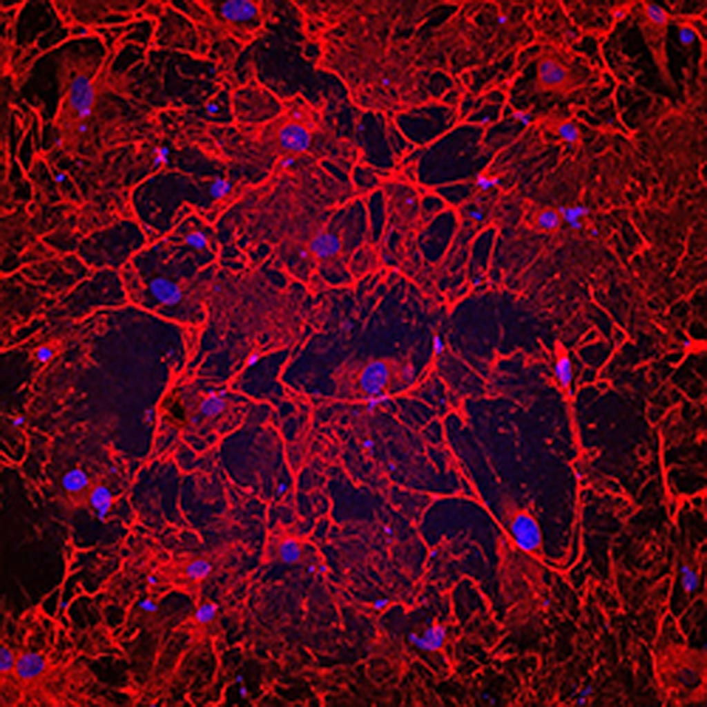 Image: A photomicrograph showing fibrotic heart cells from a patient who had heart failure. The cells have an elaborate fibronectin matrix (shown in red), which causes fibrosis and heart damage (Photo courtesy of Cincinnati Children\'s Hospital Medical Center).