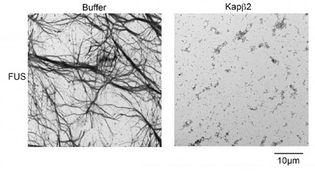 Image: Dense FUS protein fibrils form in the absence of nuclear-import receptors (NIRs, left), but are disrupted when NIRs are present (right) (Photo courtesy of Dr. James Shorter, University of Pennsylvania).
