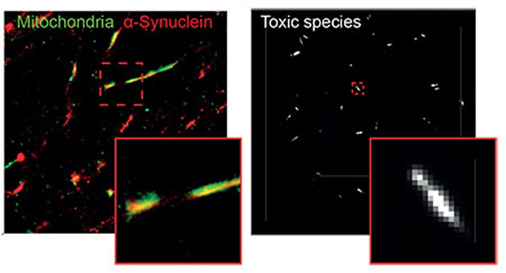Image: Alpha-synuclein in mitochondria of neuron (left) and single molecule TIRF image of individual alpha-synuclein aggregates (right) (Photo courtesy of Mathew Horrocks).