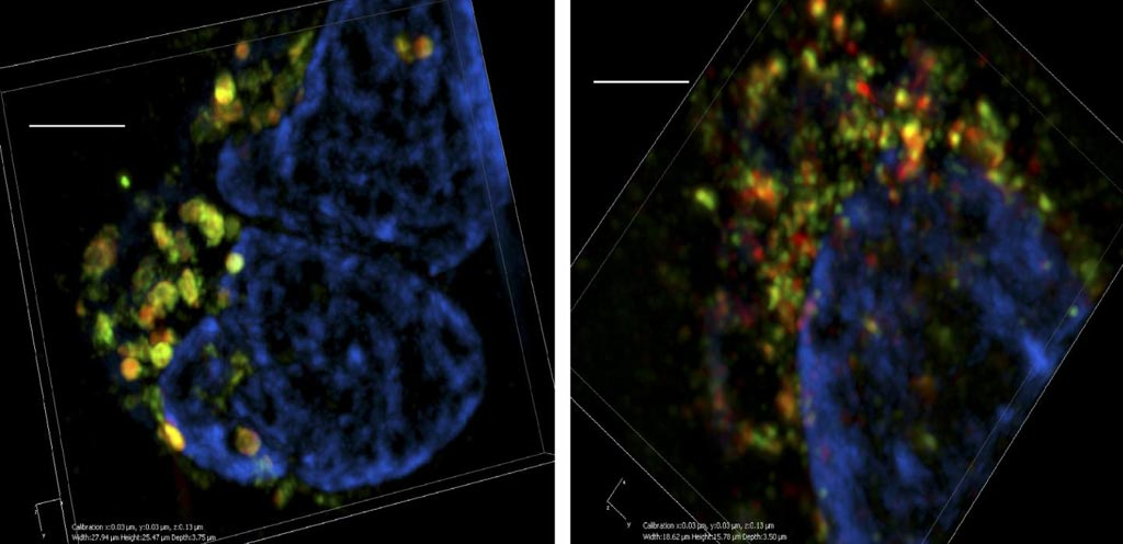Image: Three-dimensional super-resolution microscopy shows that breast cancer cells (left) contain many large multivesicular bodies (green and red) that are full of exosomes ready to be released from the cell. In the absence of Munc13-4 (right), multivesicular bodies are much smaller and incapable of releasing their contents (Photo courtesy of Messenger et al., 2018).