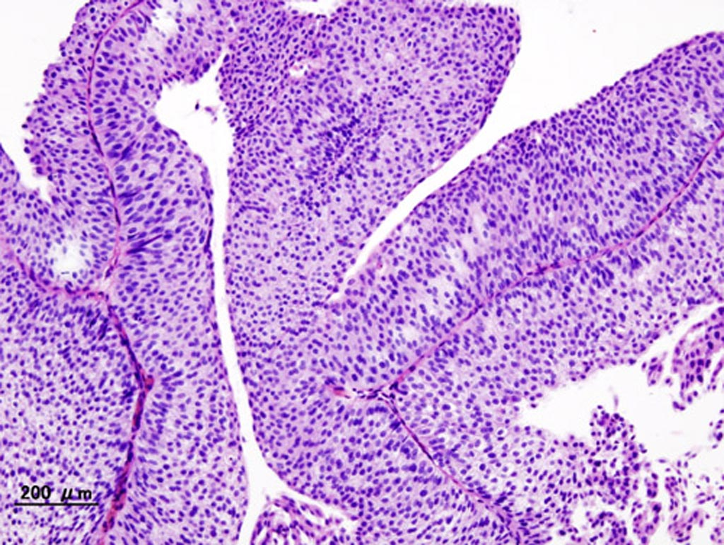 Image: A histopathology of urothelial carcinoma of the urinary bladder (Photo courtesy of Wikimedia Commons).