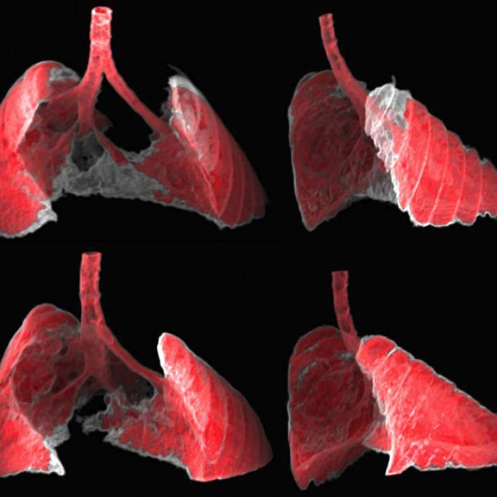 Image: The figure shows two views, frontal and lateral, of the image obtained by CT of the lungs of a mouse with fibrosis (grey areas) before and after receiving nano-therapy directed at senescent cells (Photo courtesy of Guillem Garaulet and Francisca Mulero, Institute for Research in Biomedicine).
