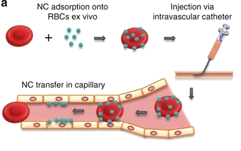 Image: Red blood cells can safely transport nanoscale drug carriers to chosen organs by targeted placement of intravascular catheters (Photo courtesy of the University of Pennsylvania).