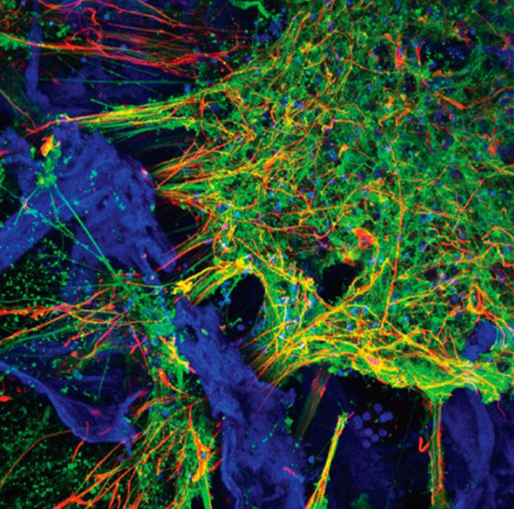 Image: Confocal image of fluorescent markers indicating presence of neurons (green), astrocytes (red) and the silk protein-collagen matrix (blue). Image field is 460 microns (Photo courtesy of Tufts University).