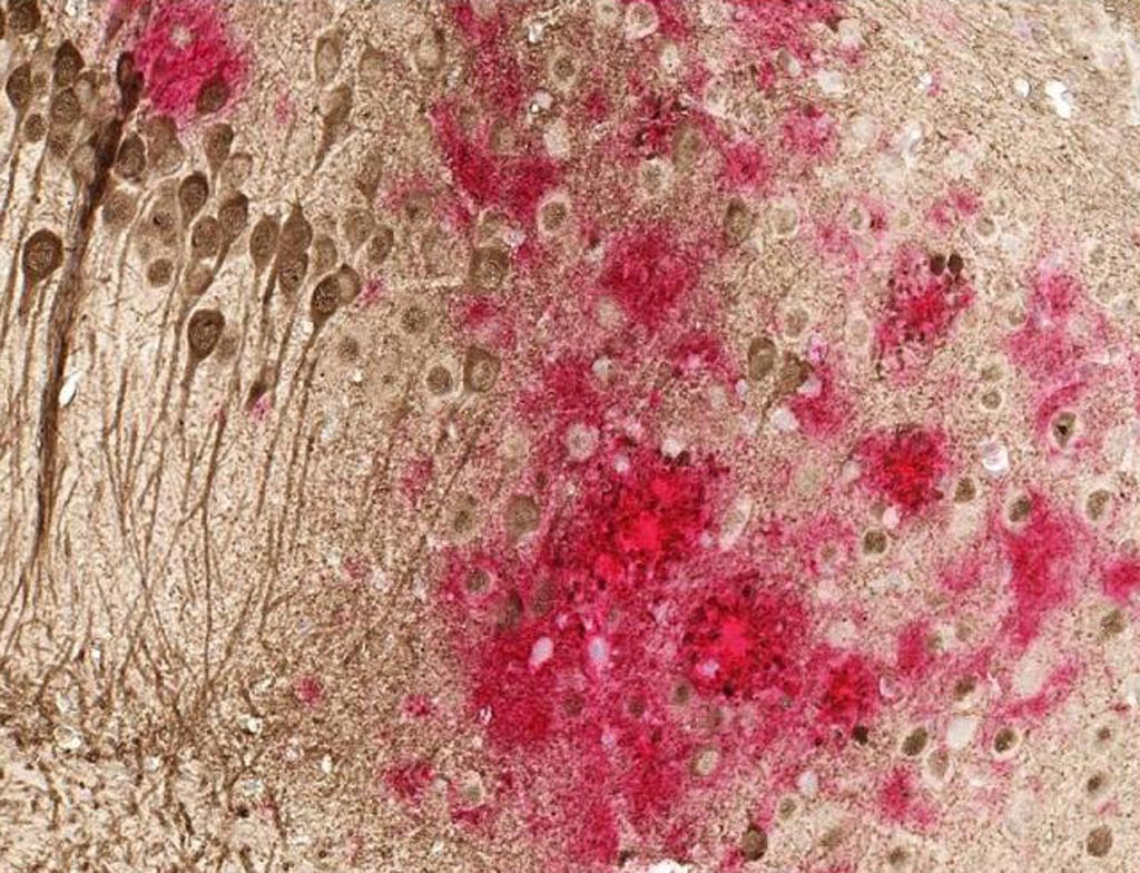 Image: Toxic amyloid plaques (red) and tau tangles (brown) form on the brain of a mouse modeled to have Alzheimer\'s disease. This study shows that a DNA vaccine reduces both amyloid and tau in the mouse AD model, with no adverse immune responses (Photo courtesy of the University of Texas Southwestern Medical Center).