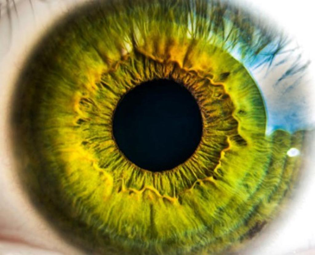 Image: New research marks a crucial step forward in the effort to identify the cause of impaired vision in people around the world. Eyesight problems frequently have a genetic origin, and often a mutation in just a single gene is involved. However, the genetic contribution of many eye-related issues remains poorly understood (Photo courtesy of the IMPC).