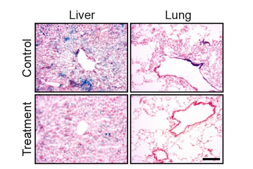 Image: Drug treatment eliminates senescent cells from tissues of old mice. The blue staining shows senescent cells in lung and liver tissue. The amount of the staining is significantly reduced following the drug treatment (Photo courtesy of The Weizmann Institute of Science).
