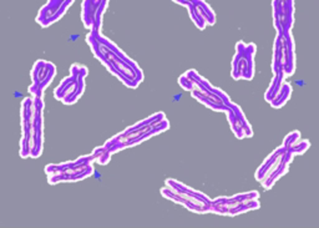 Image: An example of DNA damage causing multiple broken chromosomes (Photo courtesy of Wikimedia Commons).