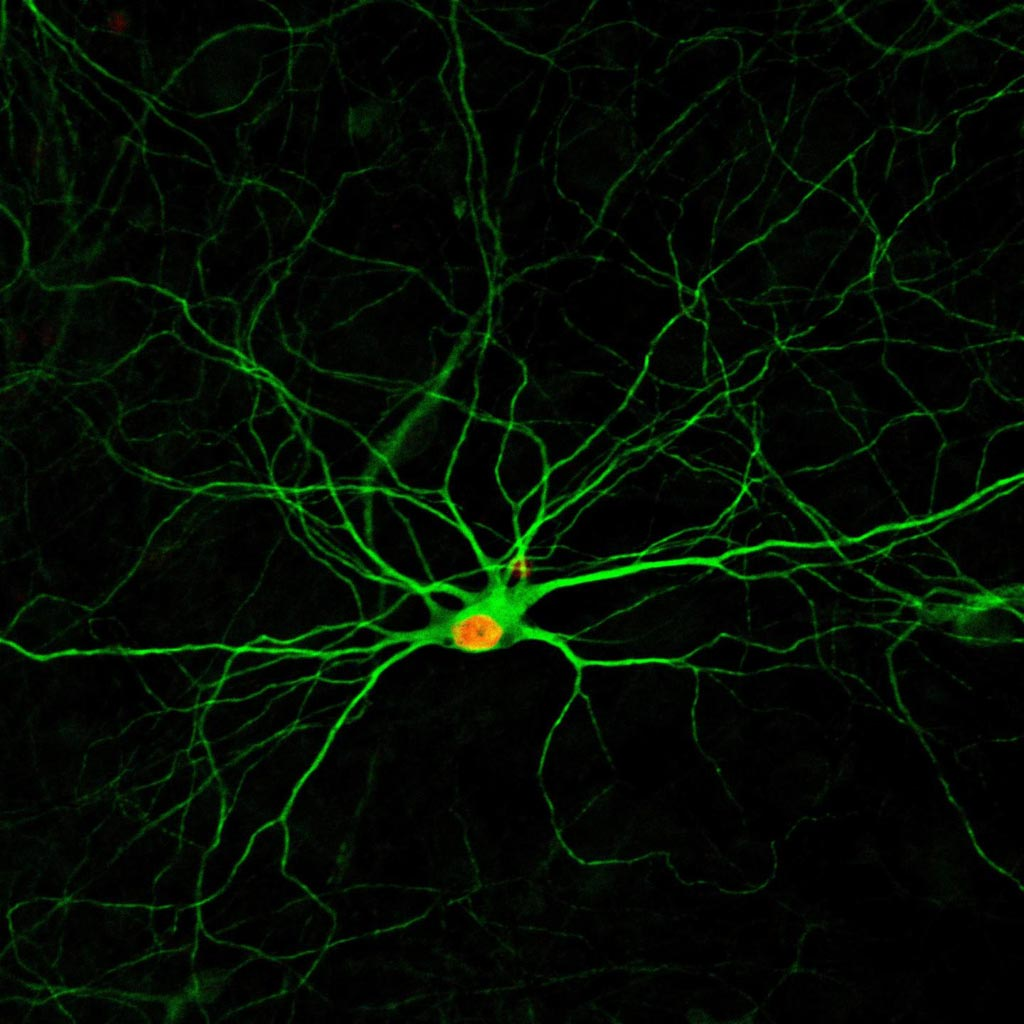 Image: A simple treatment using four small molecules converts human astrocytes - a common type of cells in the nervous system - into new neurons, which develop complex structures after four months (Photo courtesy of the Gong Chen Laboratory, Pennsylvania State University).