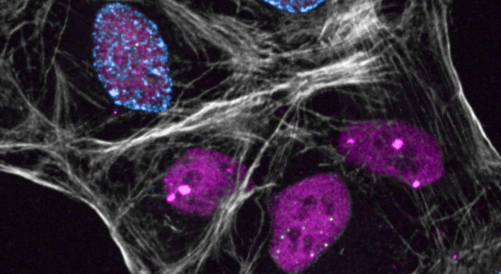 Image: Specialized proteins protect damaged DNA in the cell nucleus (pink shapes) until the damage can be repaired (Photo courtesy of the University of Copenhagen).