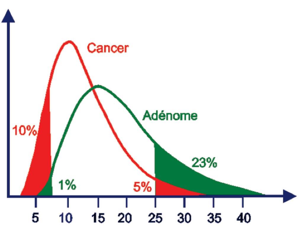 图片:前列腺癌男性患者的游离前列腺特异抗原(PSA) /总PSA比率显著减小,因为几乎所有的PSA都被固定。当比率小于10%时前列腺癌风险很高。大于25%时PSA水平的升高很可能与良性增生有关(图片取自Dianon Pathology)。