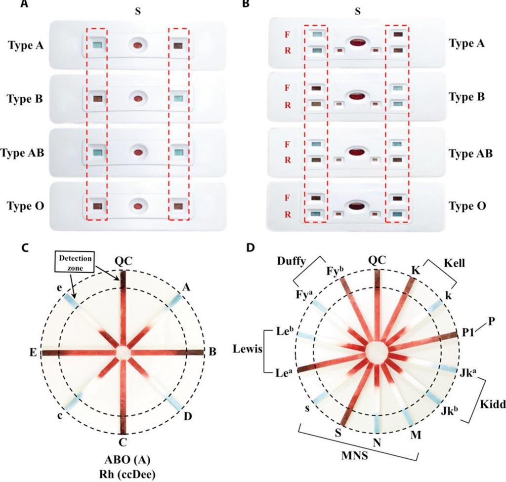 图片:根据观察区里是否存在蓝绿色确定A、B、AB和O型血(红色虚线框)。多重测定检验(C) ABO/Rh与 (D) 稀有血型系统(图片蒙第三军医大学惠赐)。