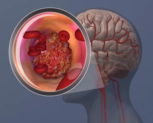 图片:近期发表的一篇论文结果显示,血液中蛋白质β-2微球蛋白水平升高与女性的缺血性中风风险升高相关(照片由AHA提供)。