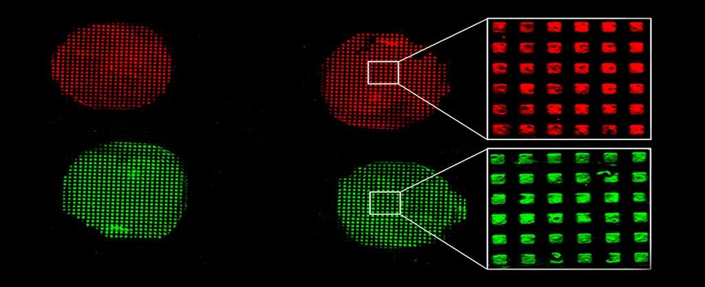 图片:微流控生物测定设备是目前首选的诊断工具.使用该设备,能从患者样本(诸如血液)中检测出疾病的生物标志物的浓度,该设备表面含有固定的生物受体,当样本通过设备表面时,能捕捉到患者样本中的生物标志物。检测人员能根据样本是否存在疾病生物标志物或相对于正常体液中生物标志物的浓度水平判定患者患有某种疾病的可能性(照片由Okinawa Institute of Science and Technology Graduate University提供)。