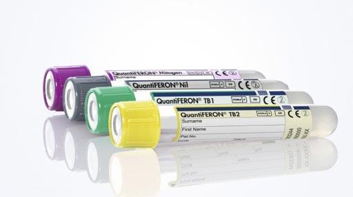 图片:新的QuantiFERON-TB Gold Plus血液检查工具,用于检测潜伏性结核病(照片由QIAGEN提供)。