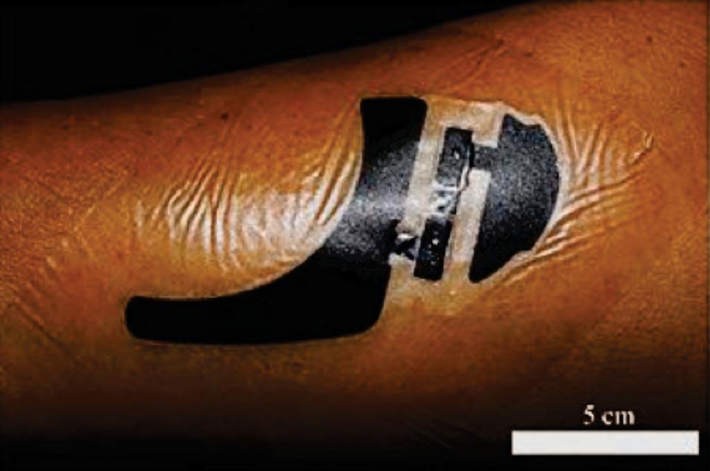 图片:为无创监测血液葡萄糖而开发的皮肤样生物传感器系统(图片蒙清华大学惠赐)。