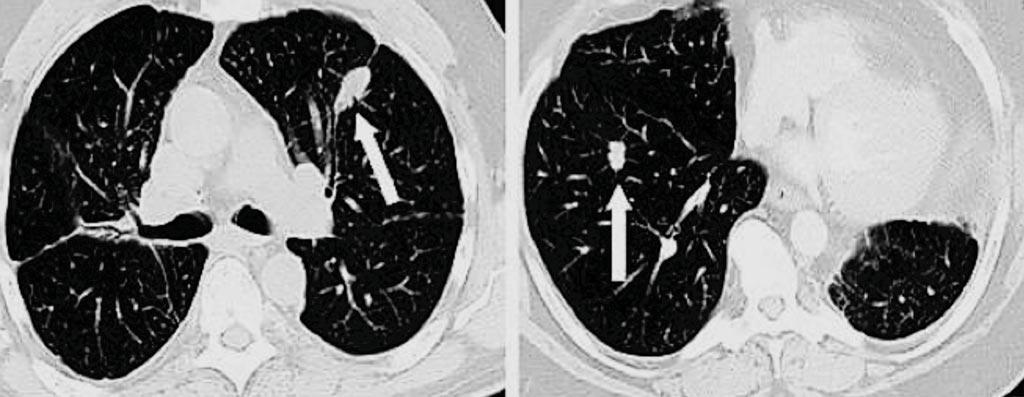两名肺结节患者的计算机断层扫描成像(CT)。左边的箭头指向良性(非癌)结节,而右边的箭头显示一小块肺癌(图片蒙谷地医院肺癌中心惠赐)。