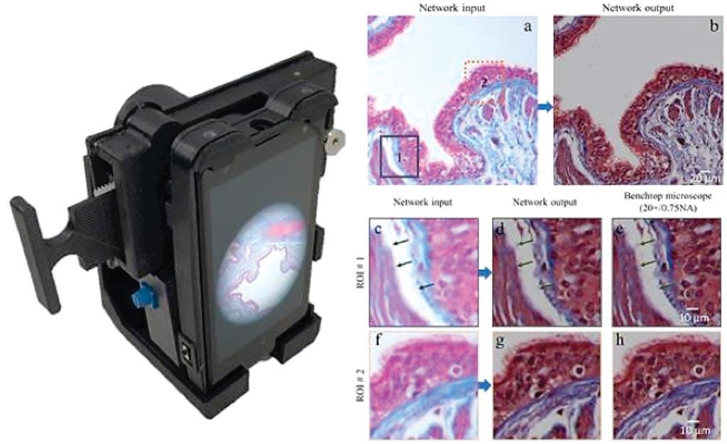 图片:3D打印出来的设备连到智能手机的摄像镜头时能捕捉显微图像(图片蒙Ozcan研究组/加州大学洛杉矶分校惠赐)。