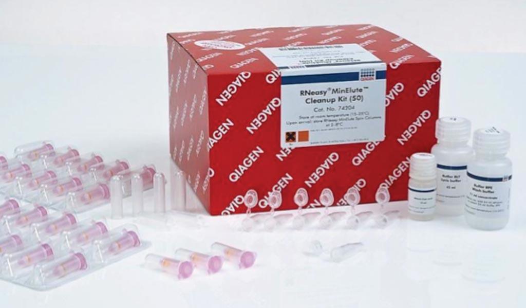 图片:RNeasy MinElute清理试剂盒(图片蒙凯杰公司惠赐)