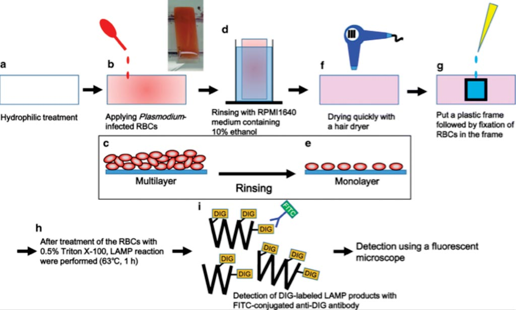 图片:在环烯烃共聚物(COC)板上用感染疟原虫的红细胞做原位LAMP的方案原理图(图片蒙日本国立产业技术综合研究所惠赐)。