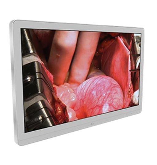 Monitor quirurgico