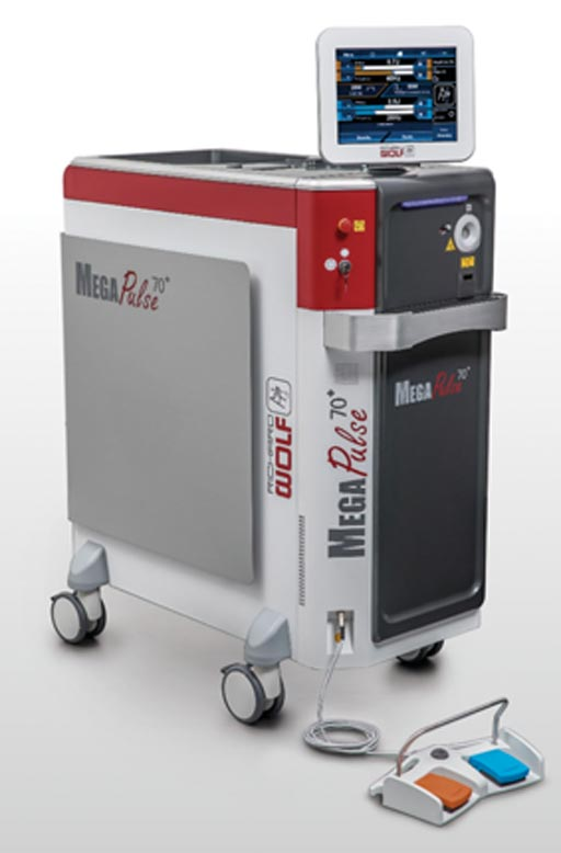 Sistema laser