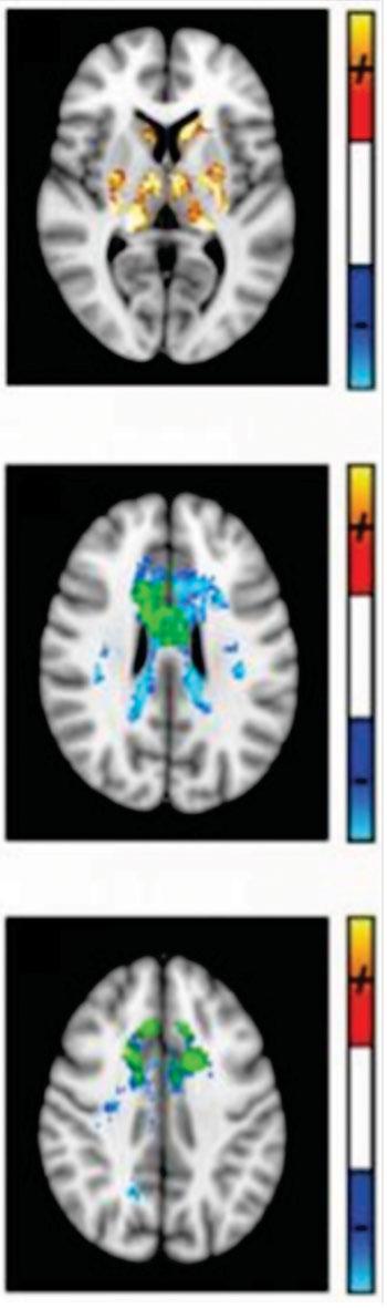 Imagen: El Dr. Ravi Menon, un científico de imágenes del Instituto de Investigación Robarts de la Universidad del Oeste, utiliza RM de susceptibilidad cuantitativa para mostrar y medir el daño producido en áreas específicas del cerebro, lo cual demostró el estudio que es común a todos los pacientes de EM y del síndrome clínicamente aislado (CIS) (Fotografía cortesía de la Universidad del Oeste).