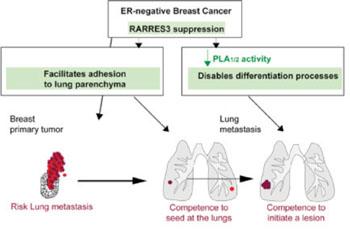 Imagen: Gráfico que explica las consecuencias de la pérdida de la función de RARRES3 para la metástasis de cáncer de mama en el pulmón (Fotografía cortesía del Instituto de Investigación en Biomedicina).