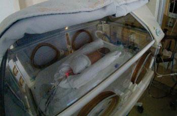 Imagen: Un bebé prematuro recibiendo nutrición parenteral (Fotografía cortesía de la Universidad de Montreal).