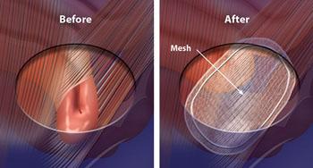 Imagen: El saco y el contenido de la hernia son devueltos a su sitio y la hernia es reparada con una malla (Fotografía cortesía del Dr. G. Tan).