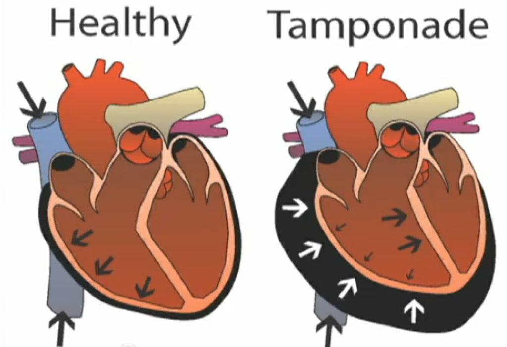 Imagen: Una comparación entre un corazón saludable y un corazón taponado (Fotografía cortesía de iStock).