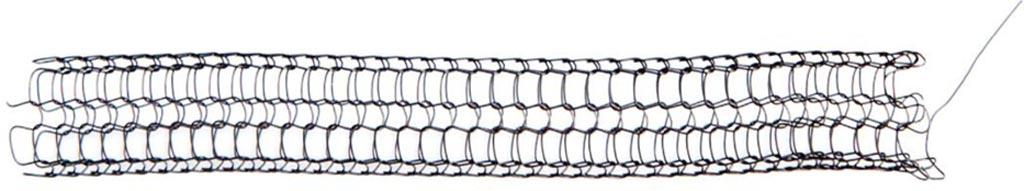 Imagen: Un nuevo stent de vía aérea está hecho con un solo hilo de nitinol (Fotografía cortesía de la NTNU).