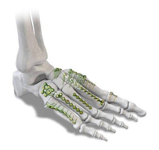 Sistema de fijación de huesos pequeños aborda lesiones de pie y ...