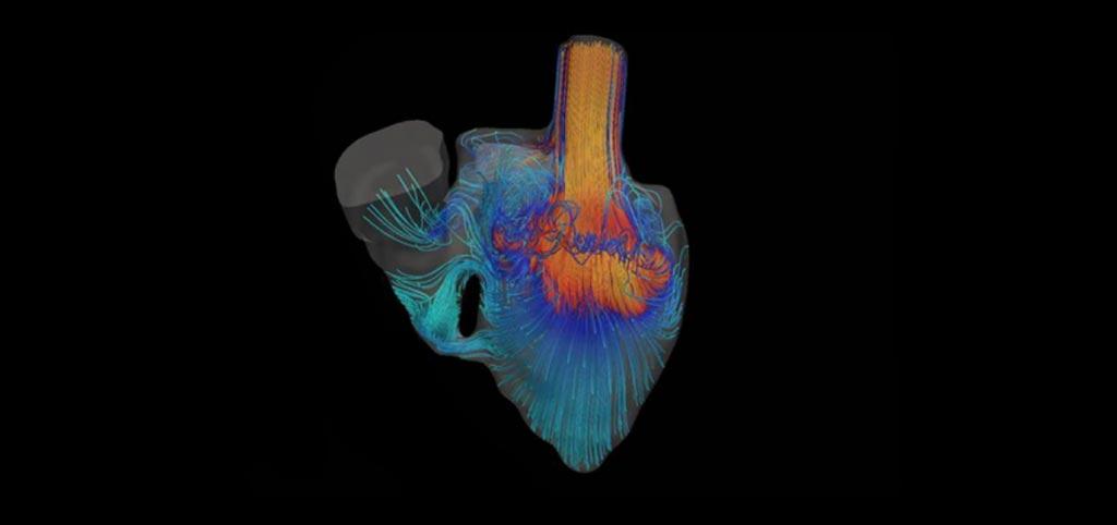 Imagen: Una simulación que muestra la sangre fluyendo a través del corazón de un bebé nacido con un defecto (Fotografía cortesía del Laboratorio Marsden/Universidad de Stanford).