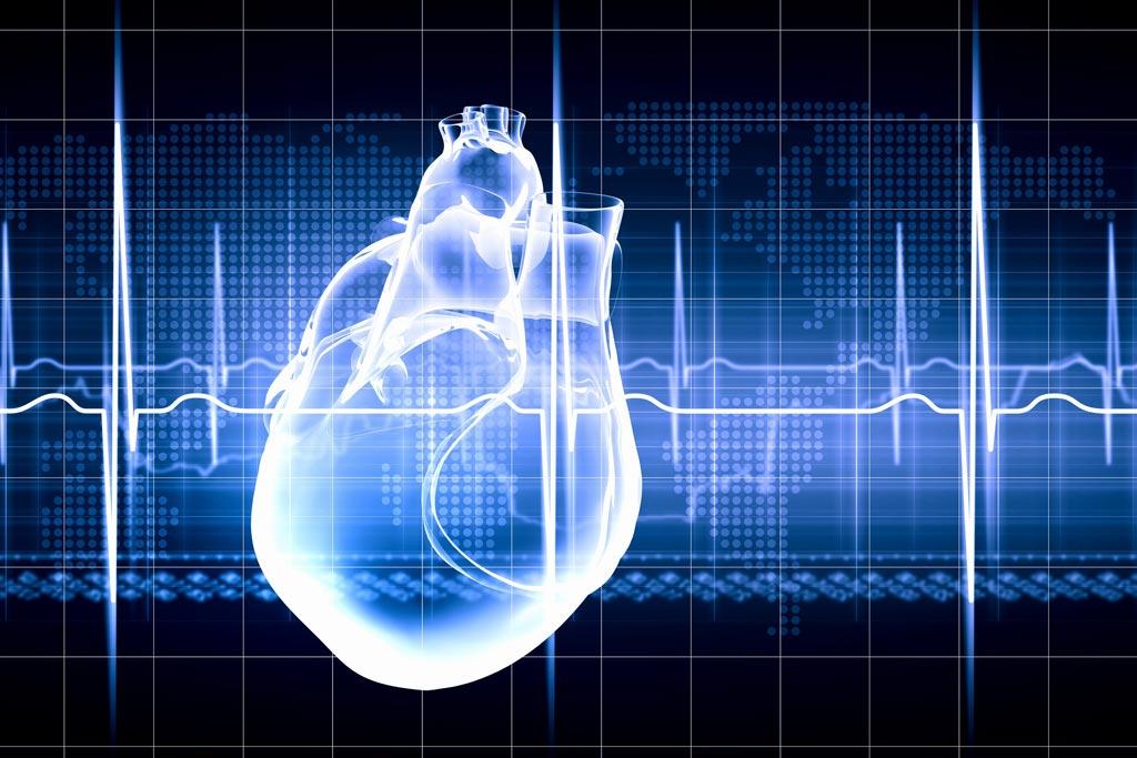 Imagen: Un nuevo estudio sugiere que las personas inscritas en un registro de insuficiencia cardíaca reciben mejor atención (Fotografía cortesía de ThinkStock).