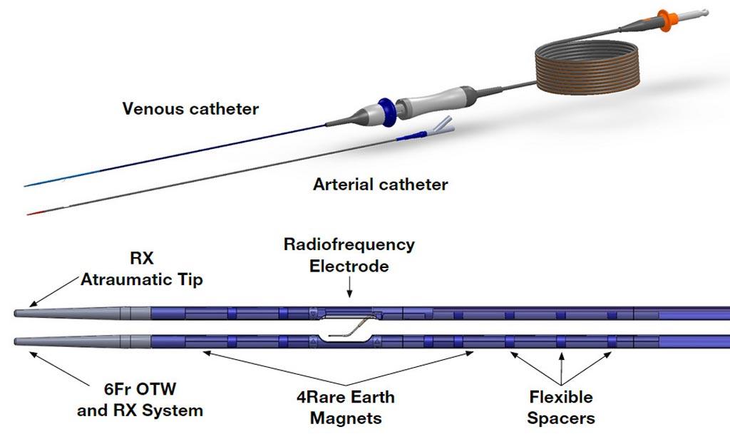 Imagen: Un nuevo sistema con dos catéteres crea una AVF no traumática (Fotografía cortesía de TVA Medical).